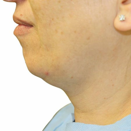 neck-lift-before
